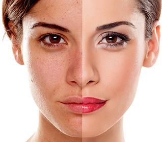Melasma, Hyperpigmentation, Dark Spot Removal, Dermatologist